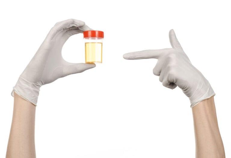 בדיקת שתן לפני בדיקת ציסטוסקופיה
